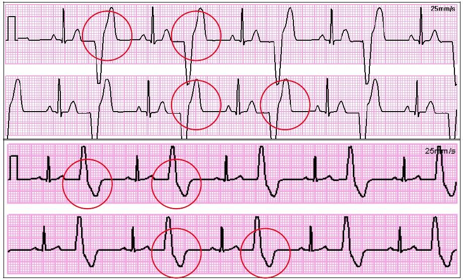 Recognizing ECG Irregularities   Favoriteplus.com Blog