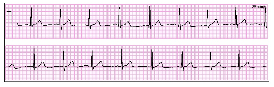 recognizing ecg irregularities | favoriteplus blog