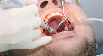 Choices For Tmj Temporo Mandibular Joint Surgery Favoriteplus Com Blog