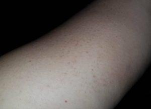 eczema favorite plus