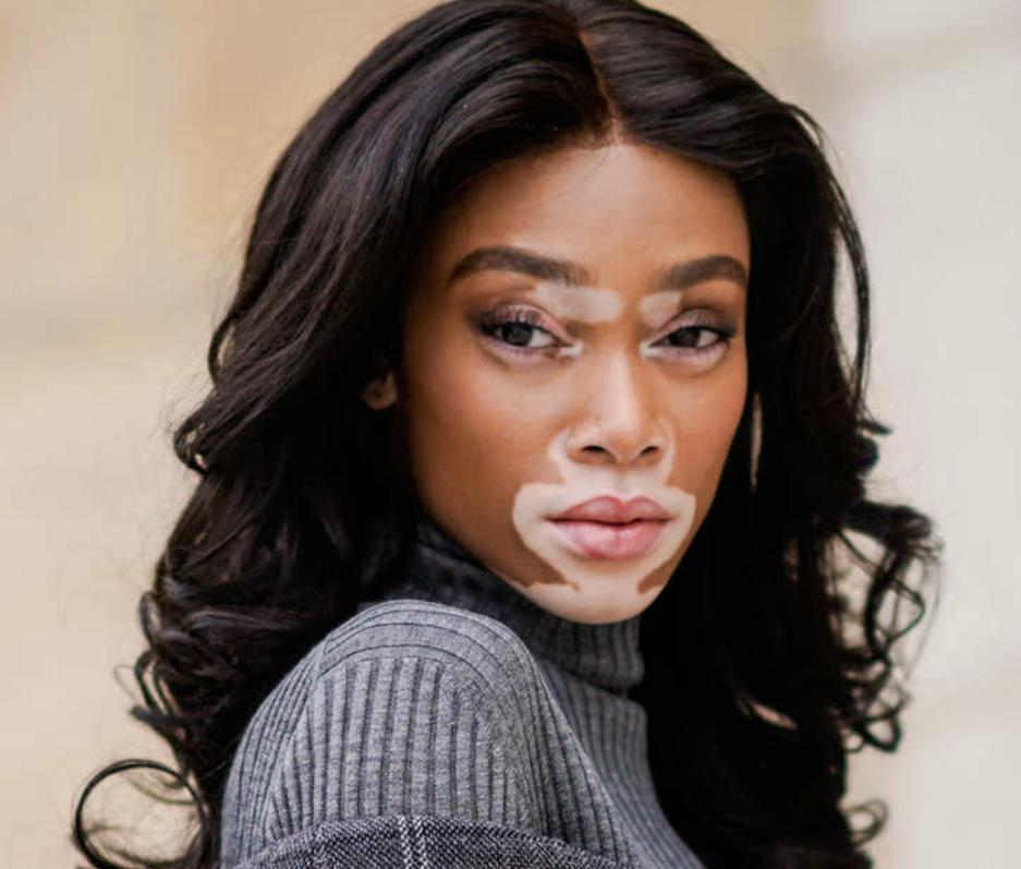 Vitiligo In Teenagers Favoriteplus Com Blog