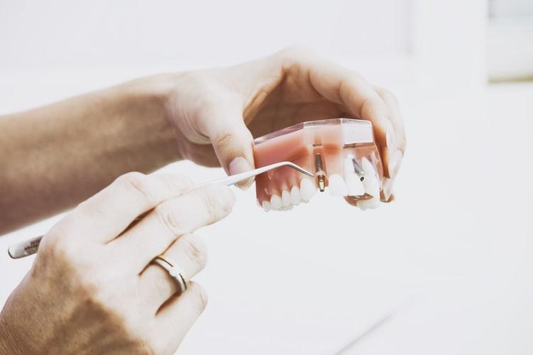 dental trauma favoriteplus dental camera