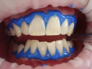 cosmetic dentistry favorite plus