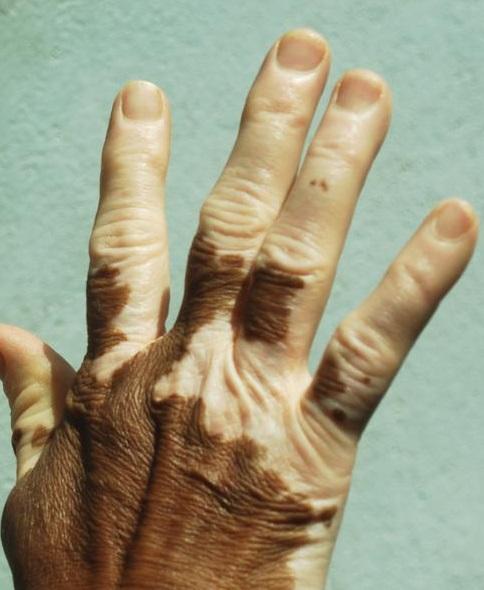 vitiligo light therapy