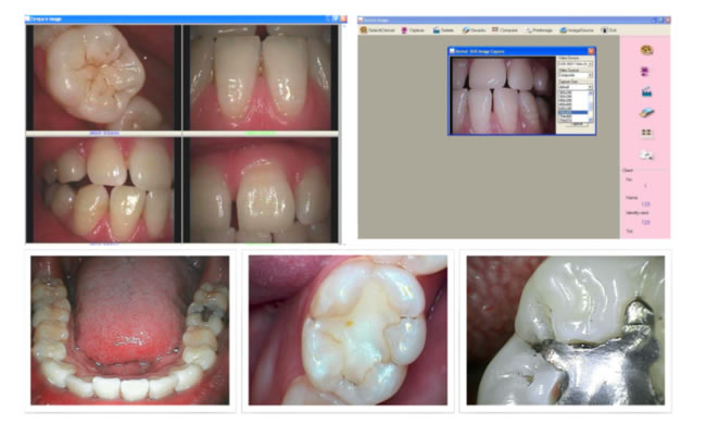 Image result for intraoral dental camera