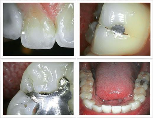 Dental Intraoral Camera Focusdent Md740  Dental Camera